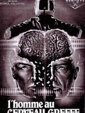 Man with the Transplanted Brain